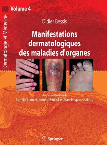 Manifestations dermatologiques des maladies d'organes, volume 4