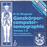Ganzkörpercomputertomographie. CD- ROM- Version