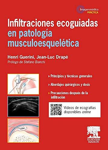 Infiltraciones Ecoguiadas En Patología Musculoesquelética, 1E por Henri Guerini