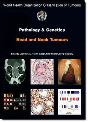 Pathology and Genetics of Head and Neck Tumours (IARC WHO Classification of Tumours) by The International Agency for Research on Cancer (2005-03-01)