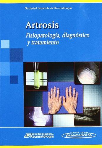 Artrosis, Fisiopatolo¿gía, diagnóstico y tratamiento