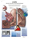 3B Scientific Lehrtafel - COPD chronisch obstruktive Atemwegserkrankungen