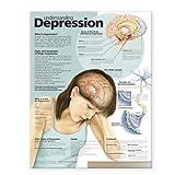 Best Libros para Depresiones - Tabla anatómica de depresión de comprensión Review