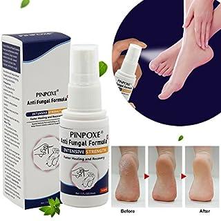 Fußpilz Spray, Fußspray, fungizid, Die effizient Juckreiz und Entzündungen an den Füßen steuern, kuriert und verhindert Pilzinfektionen, Bei Fußpilz, Fußschweiß und Fußgeruch, 30ml