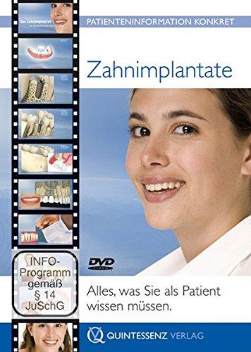 Zahnimplantate: Alles, was Sie als Patient wissen müssen