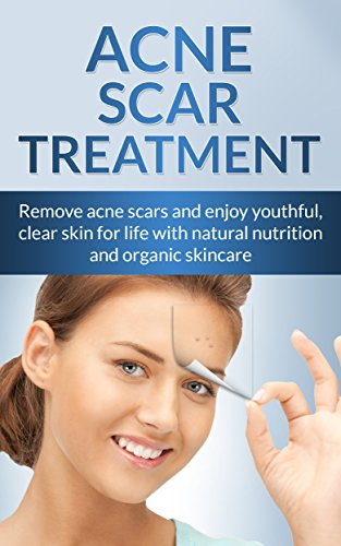 Acne Cure: Remove Acne Scars For Life With Natural Nutrition And Organic Skincare (Special Bonus Included) (Acne scar Treatment, skin care secrets, Social Anxiety Disorder, Cystic Acne, shyness cure)
