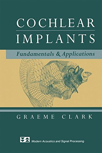 cochlear-implants-fundamentals-and-applications-modern-acoustics-and-signal-processing