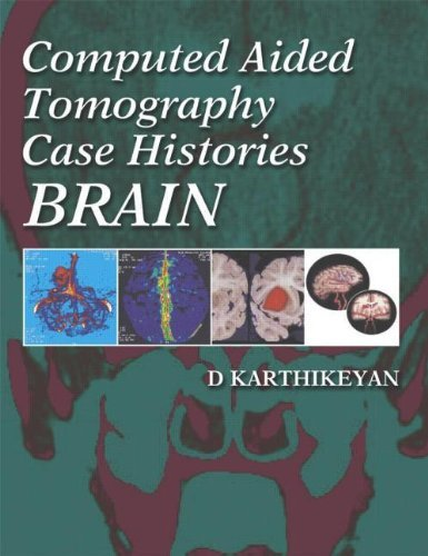 Computed Aided Tomography Case Histories: Brain by D Karthikeyan (2005-07-29)