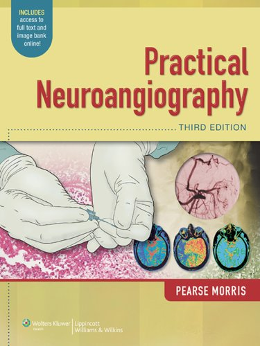 Practical Neuroangiography (English Edition)