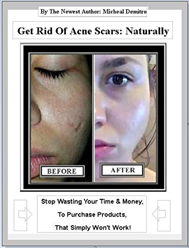 get-rid-of-acne-scars-naturally-how-to-clear-acne-scared-skin-english-edition