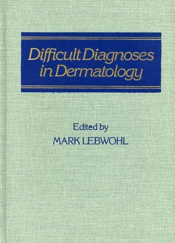 Difficult Diagnoses in Dermatology