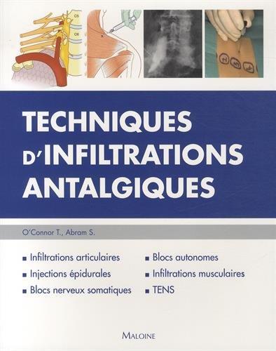 Techniques d'Infiltrations Antalgiques