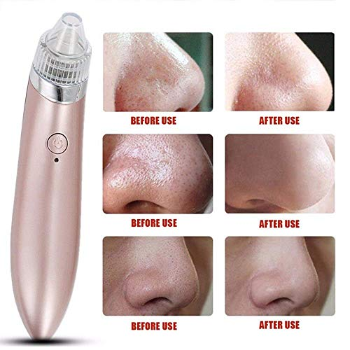 Dayons Pore Spot Cleaner Vacuum Beauty Facial Skin Care Tool USB Rechargeable Blackhead Remover (multicolor)