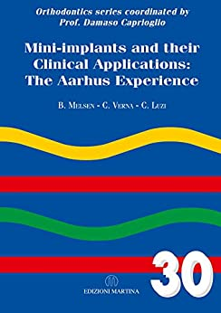 Mini-implants And Their Clinical Applications: The Aarhus Experience (English Edition) di [Melsen, Birte, Verna, Carlalberta, Luzi, Cesare]