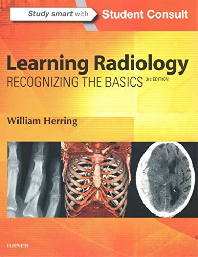 [(Learning Radiology : Recognizing the Basics)] [By (author) William Herring] published on (June, 2015)