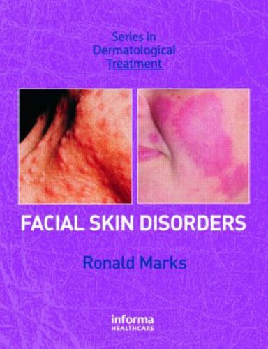 Facial Skin Disorders (Series in Dermatological Treatment) by Ronald Marks (2007-03-06)