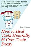 How to Heal Teeth Naturally & Cure Tooth Decay: The book on holistic dental care, healing cavities, toothaches, dental pains, oil pulling and more...
