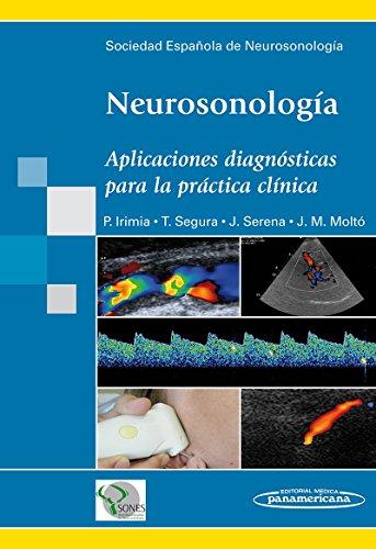 Neurosonología: Aplicaciones diagnósticas para la práctica clínica por Pablo Irimia Sieira