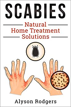 Scabies Natural Home Treatment Solution (English Edition) di [Rodgers, Alyson]