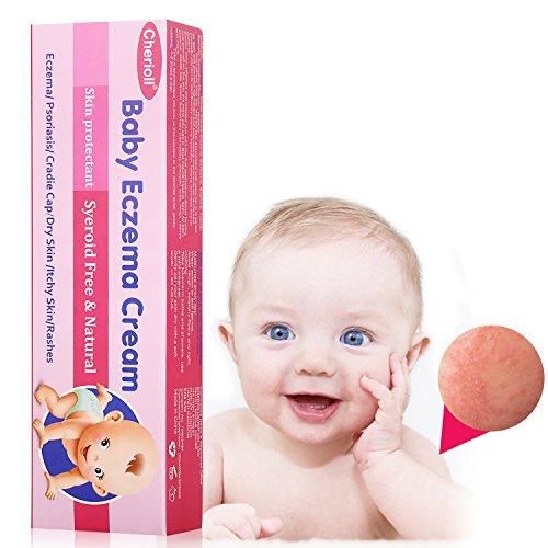 ekzeme creme,eczema treatment,baby eczema,baby eczema cream,entlastet Hautausschlag-Rötung auf empfindlicher Säuglingshaut 25g (Baby-hautausschläge-creme)