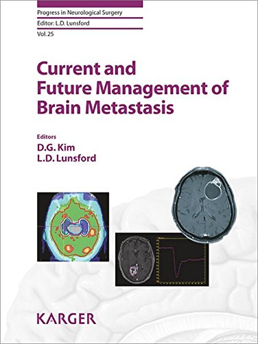 Current and Future Management of Brain Metastasis (Progress in Neurological Surgery, Band 25)