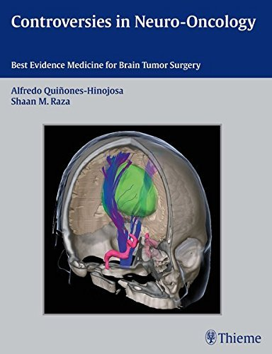 Controversies in Neuro-Oncology by Alfredo Quinones-Hinojosa (2013-10-09)