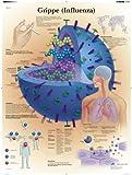 3B Scientific Lehrtafel - Grippe (Influenza)