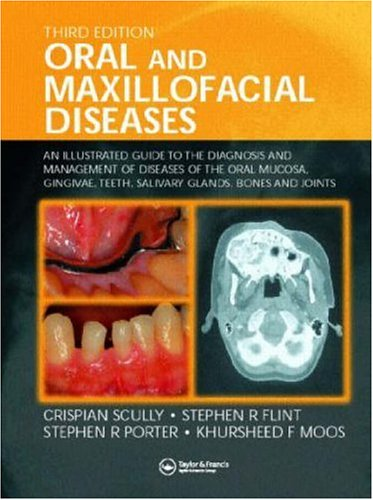 Oral and Maxillofacial Diseases: An Illustrated Guide to Diagnosis and Management of Diseases of the Oral Mucosa, Gingivae, Teeth, Salivary Glands, Bones and Joints, Third Edition