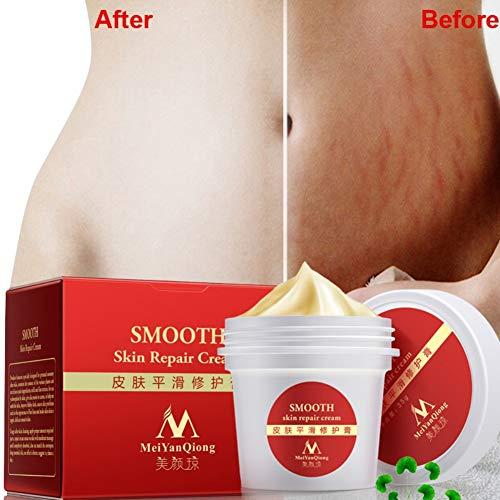 Ardorlove Glatte Haut-Creme, Dehnungsstreifen Narben-Entfernung zur Mutterhaut-Reparatur-K?rper-Creme entfernen Narbe-Sorgfalt-Postpartum