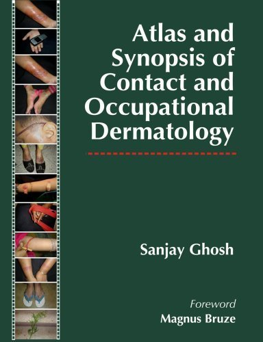 Atlas and Synopsis of Contact and Occupational Dermatology 1st Edition by Ghosh, Sanjay (2009) Hardcover