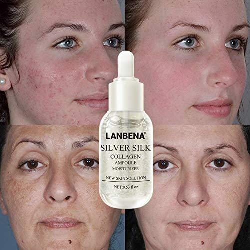 Esencia Facial Oyalaiy - Suero Facial Hidratante Colágeno
