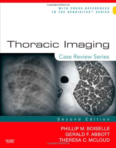 Thoracic Imaging: Case Review Series, 2e