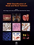 #3: Who Classification of Head and Neck Tumours (World Health Organization Classification of Tumours)