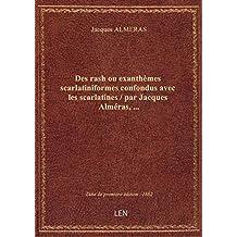 Des rash ou exanthèmes scarlatiniformes confondus avec les scarlatines / par Jacques Alméras,...