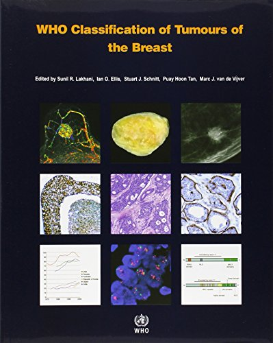 WHO Classification of Tumours of the Breast