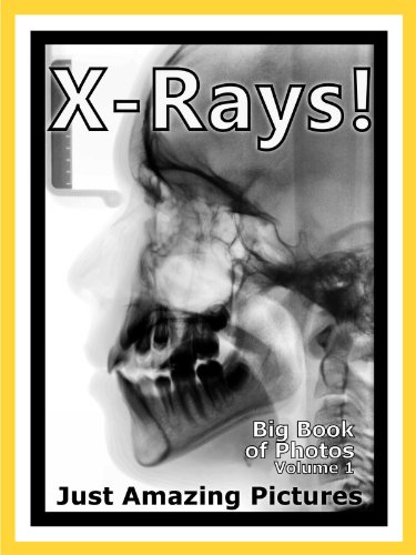 Just X-Ray Photos! Big Book of Photographs & Pictures, used for sale  Delivered anywhere in UK