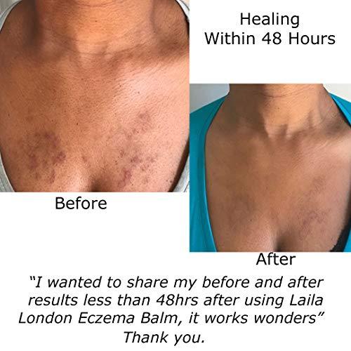 Zoom IMG-2 pelle secca eczema rosacea dermatiti