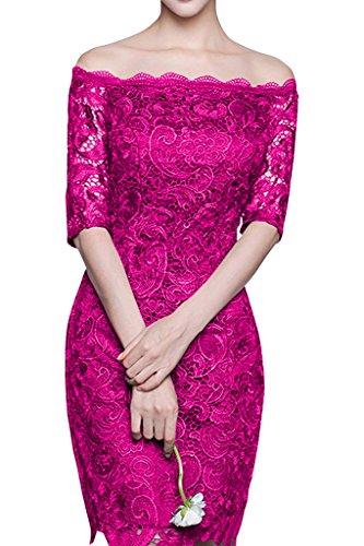 Charmant Damen Elegant Dunkel Gruen Spitze Abendkleider Partykleider Knie-lang Promkleider Fuer Geburtstagsfeiern Kurz Pink