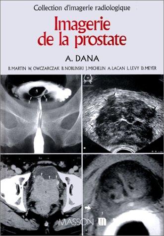 Imagerie de la prostate