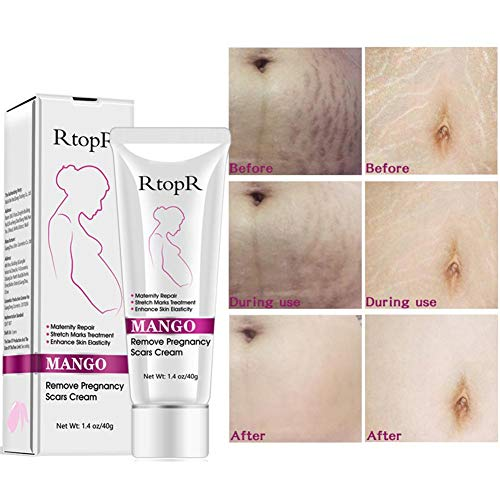 RtopR Mango Anti-Stretching Cream,Mango Stretch Marks and Scar Cream -Stretch Marks and Scar Removal Cream for Pregnancy - Body Moisturizer -