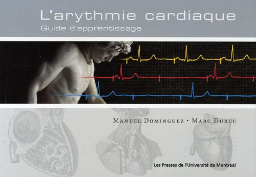 Arythmie cardiaque : Guide d'apprentissage