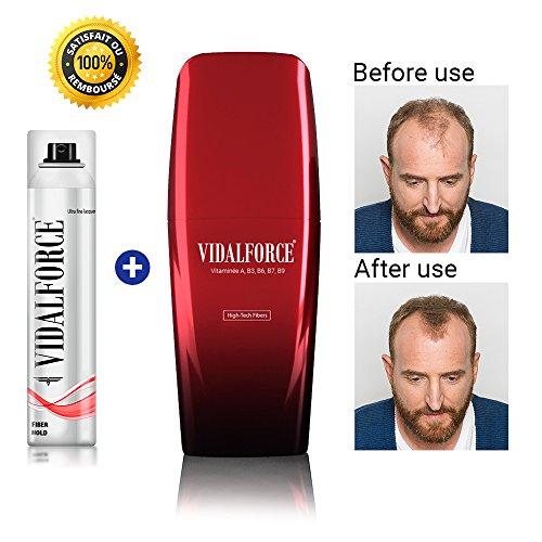 Vidalforce, Producto para la Caída del Cabello - 25 gr