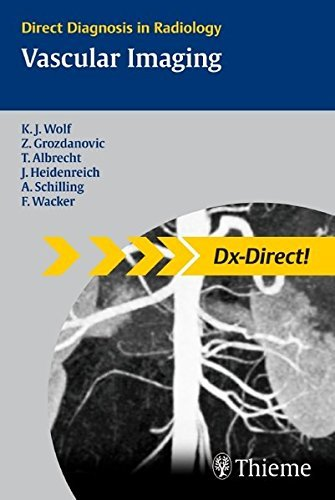 Vascular Imaging (Direct Diagnosis in Radiology) by Karl-J¨¹rgen Wolf (2009-02-25)