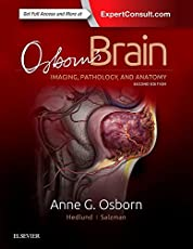 Osborn's Brain, 2e