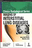 #10: Clinico Radiological Series Imaging of Interstitial Lung Diseases