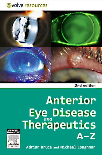 Anterior Eye Disease and Therapeutics A-Z, 2e by Adrian S. Bruce BScOptom PhD FAAO FVCO (22-Jul-2011) Paperback