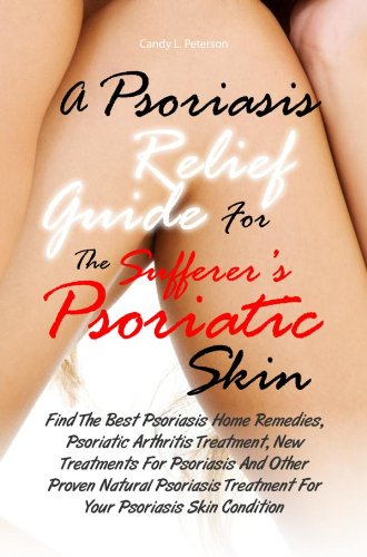 Psoriasis Relief (A Psoriasis Relief Guide For The Sufferer's Psoriatic Skin:Find The Best Psoriasis Home Remedies, Psoriatic Arthritis Treatment, New Treatments For Psoriasis (English Edition))