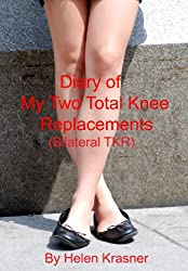 Diary of my Two Total Knee Replacements (Bilateral TKR)