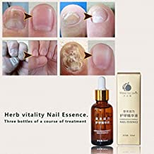 Generic 30g Finger Toe Care Anti Fungal Nail Treatment Nail Fungus Infection Essence Oil