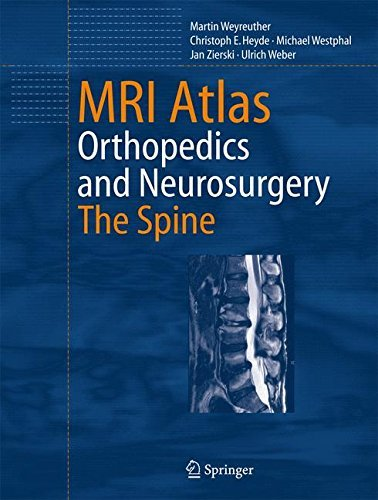 MRI Atlas: Orthopedics and Neurosurgery, The Spine by Martin Weyreuther (2006-10-13)